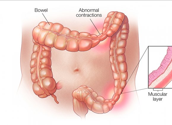 Irritable Bowel Syndrome –What Is It?