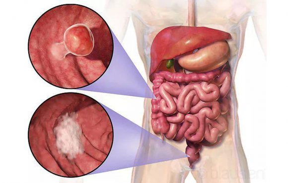 Colon Cancer Rates Increase Among Younger Adults
